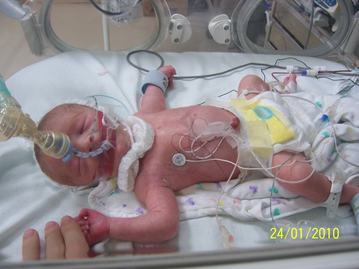 World Prematurity Day ~ Our Story and What It Means To Us - Part One