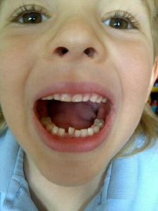 Wriggler's 1st loose tooth